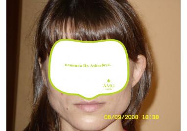 Светлана, 32 года До