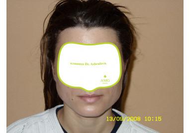 Светлана, 32 года После